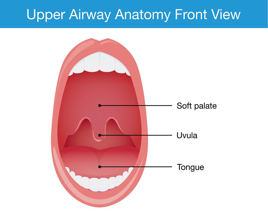 uvulitis