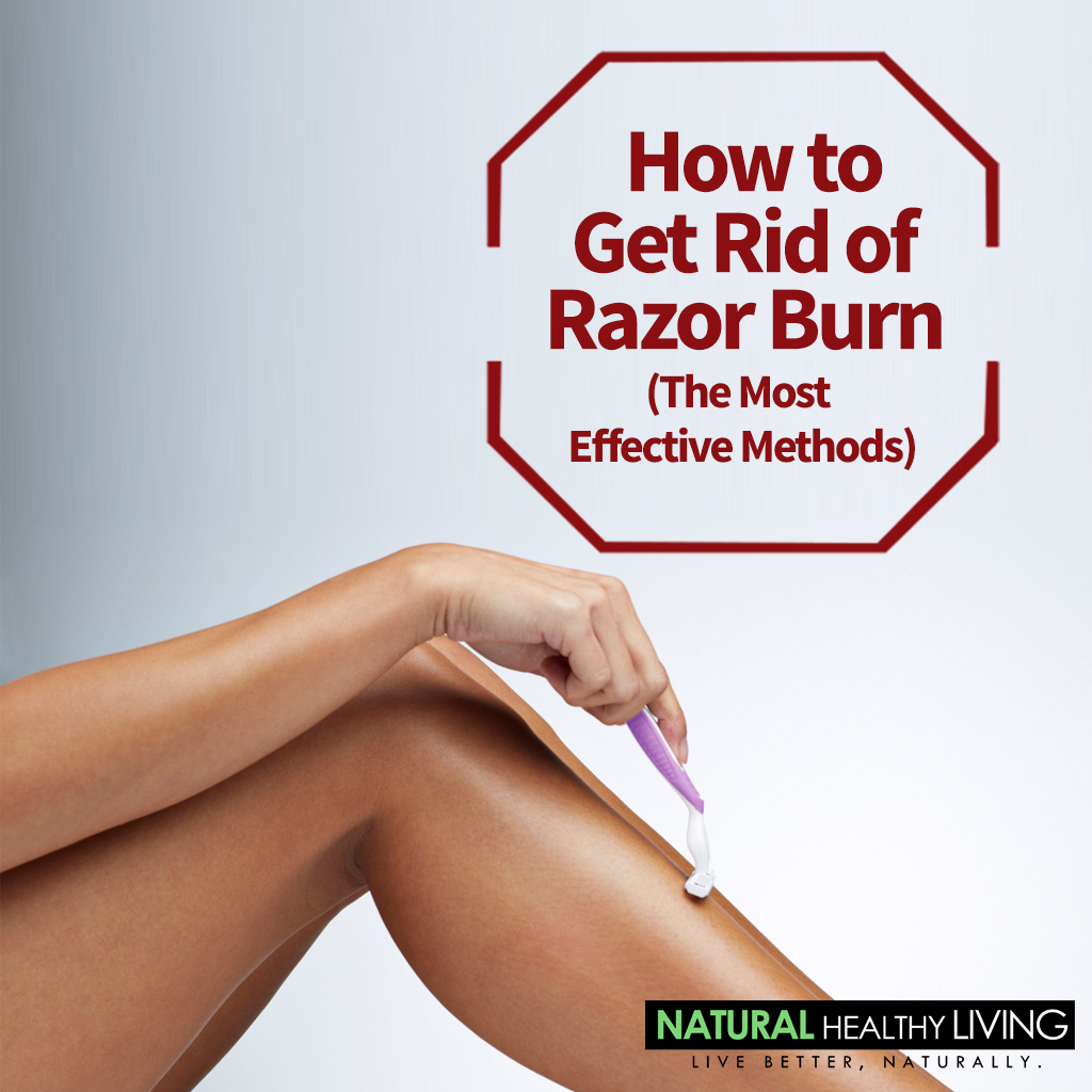 How To Get Rid Of Razor Burn: The Definitive Guide
